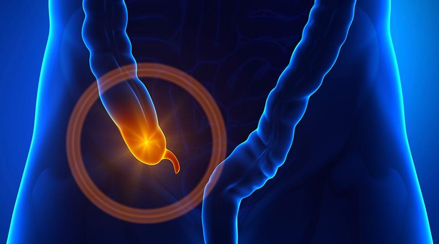 Apendicectomia en Cuernavaca