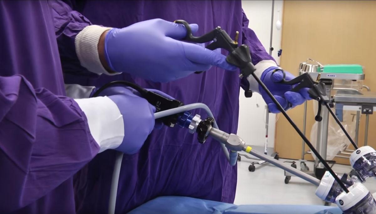 Cirugía de vesícula en Cuernavaca